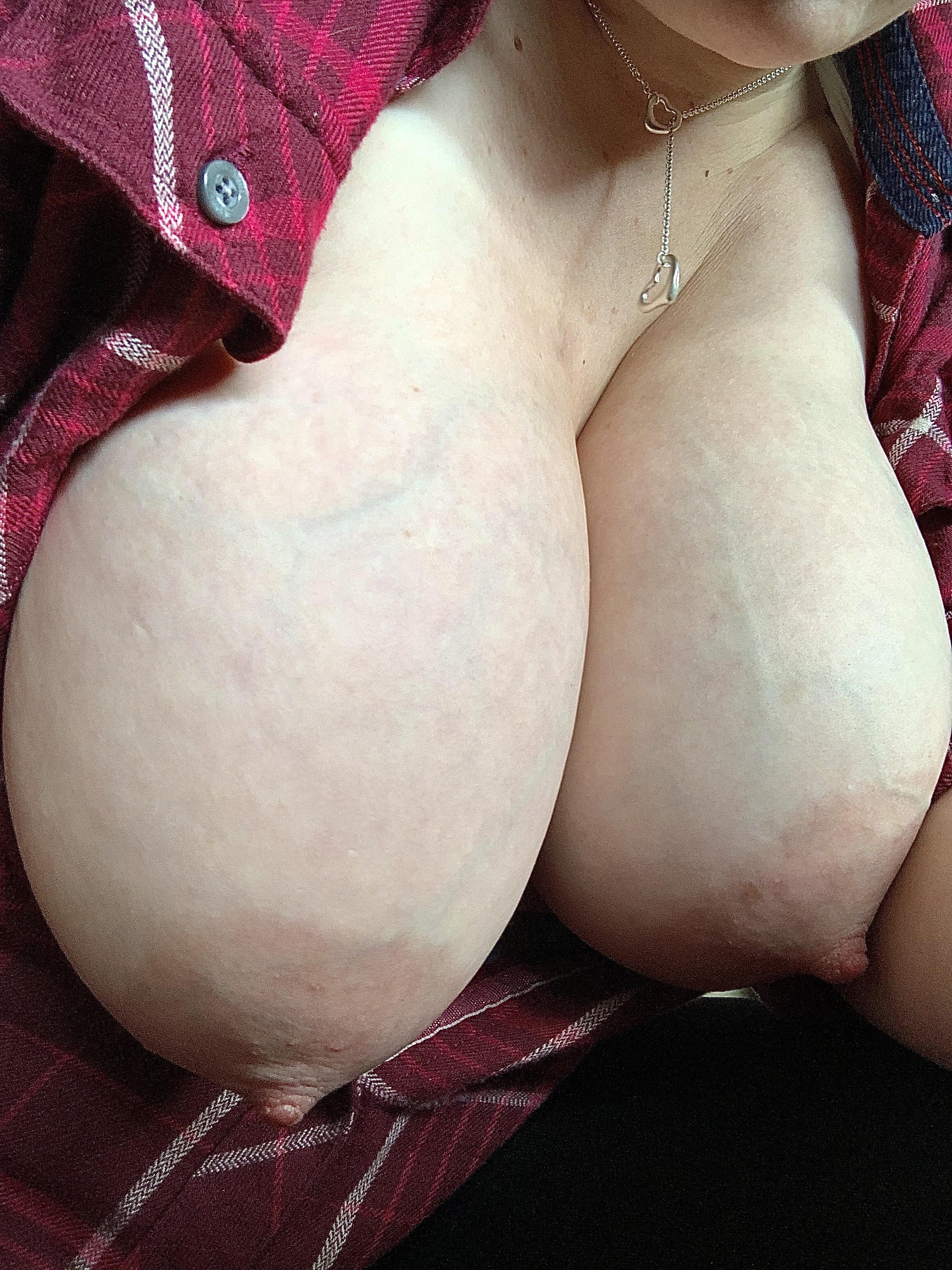 Engorged veiny breasts